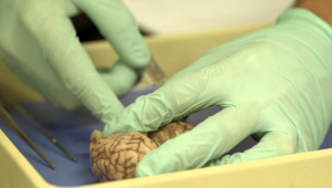 Neuroscience club and FPPN collaborate for upcoming brain dissection