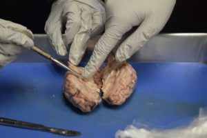 Future Practicing Physicians Network holds annual dissection meeting